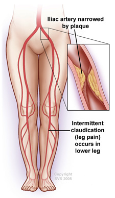 claudication and massage https://www.medicinenet.com/claudication/article.htm#what_causes_claudication